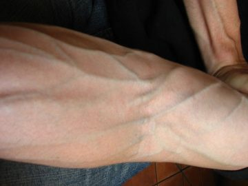 why are your veins blue