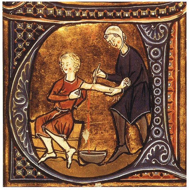 علاج قديم غريب