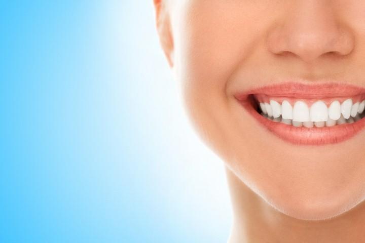 طلاء للأسنان
