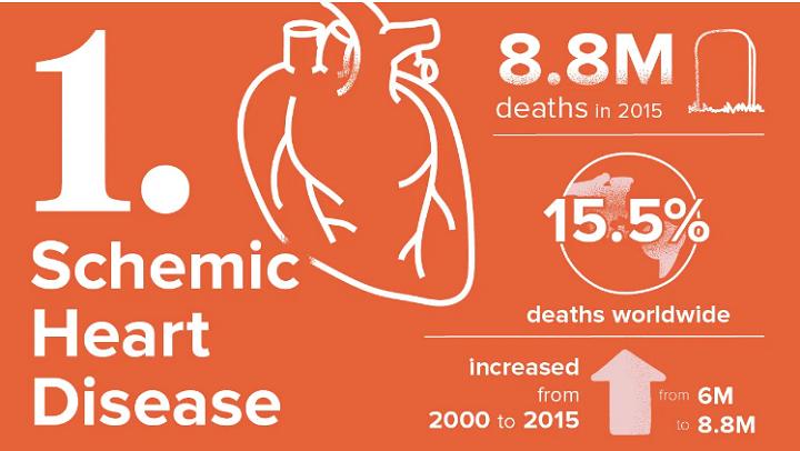مرض القلب الإقفاري