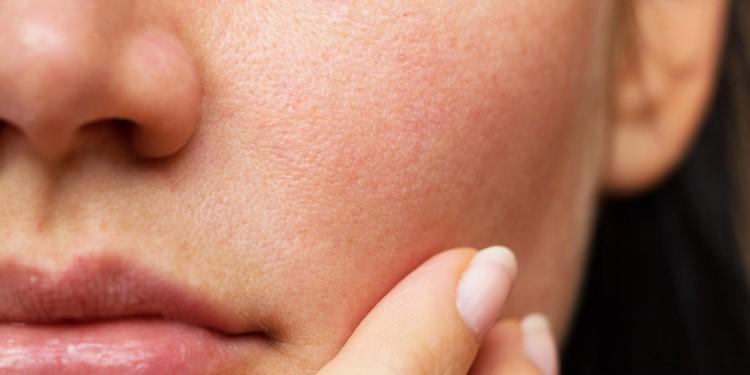 خلايا الجلد